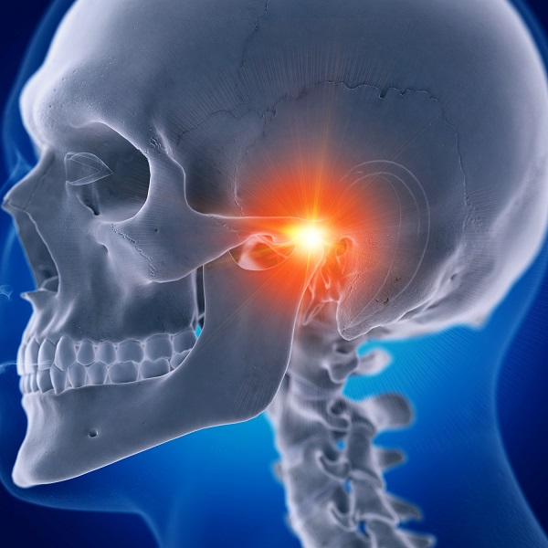 Illustration of TMJ pain caused by temporomandibular joint disorder