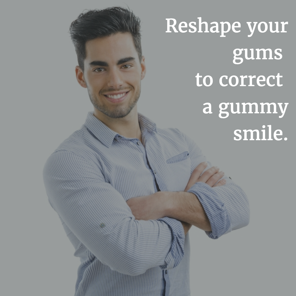 correct your gummy smile