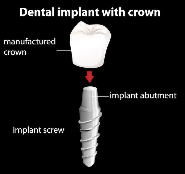 dental implant diagram - Lakewood implant dentist