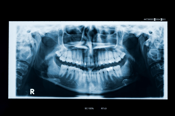 digital x-rays for a Lakewood dental patient