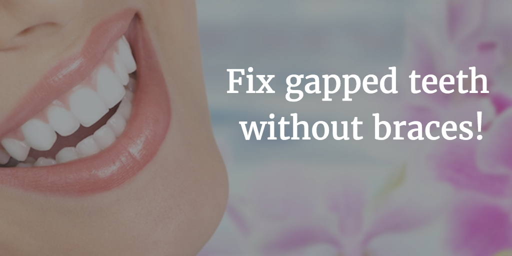 Fix Gapped Teeth - Cosmetic Dentist Dr. Scott Greenhalgh