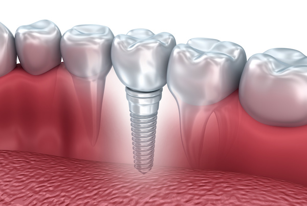 Implant functions like natural tooth