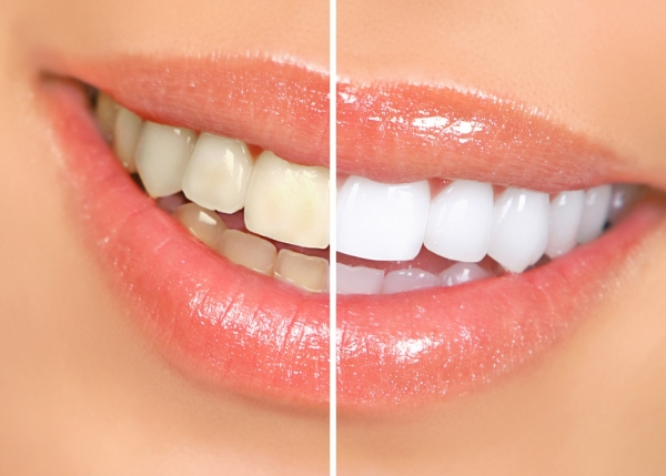 teeth whitening patient in Denver - before and after photo