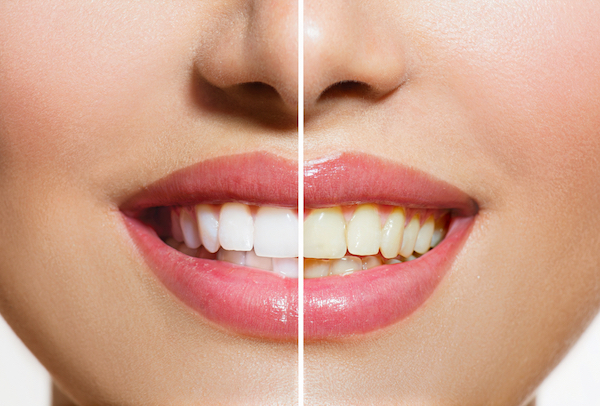 Stained Teeth - Before & After Tooth Whitening